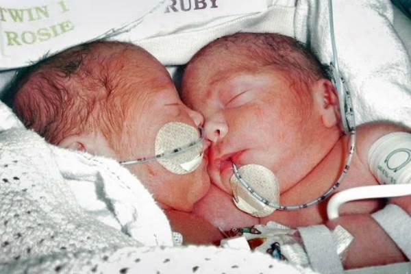 Cặp song sinh dính liền sau 4 năm phẫu thuật tách rời - Ảnh 1