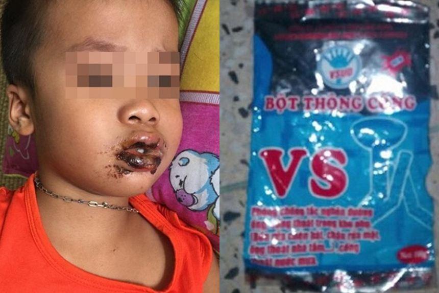 Cháu bé 5 tuổi nhập viện vì ăn nhầm bột thông cống