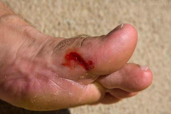 Có thể phải cắt chân nếu có dấu hiệu này mà không đi khám ngay