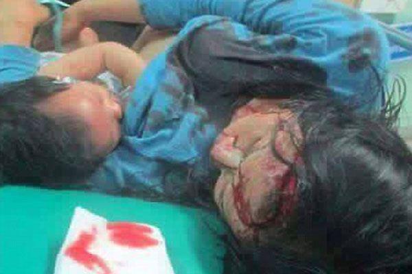 Xúc động bức ảnh người mẹ bị thương nặng vẫn cho con bú