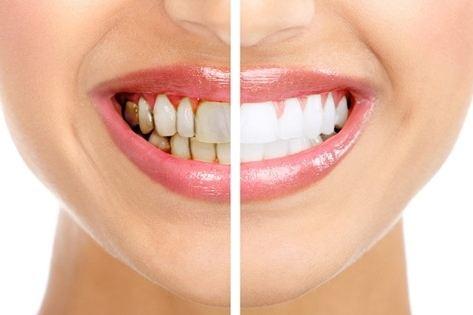Răng luôn trắng, sáng bóng và hết cao răng chỉ 1 phút mỗi ngày
