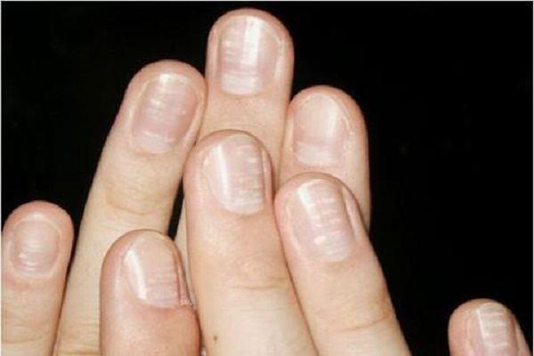"""Đốm trắng trên móng tay """"tố"""" bệnh gì?"""