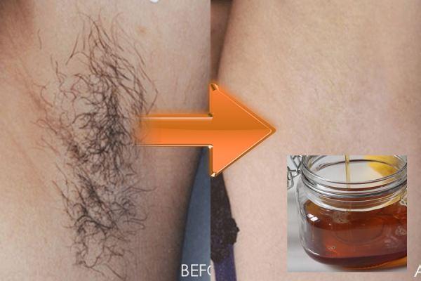 Cách loại bỏ lông nách không cần nhíp bằng mật ong