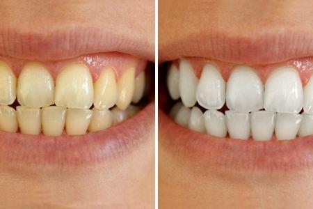 Tẩy trắng răng trong tích tắc với 7 nguyên liệu tự nhiên dễ kiếm