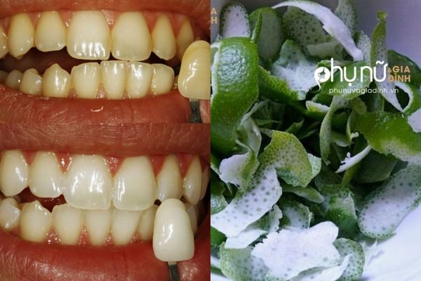 Răng ố vàng chuyển thành trắng bóng sau 2 phút chà thứ này - Ảnh 1