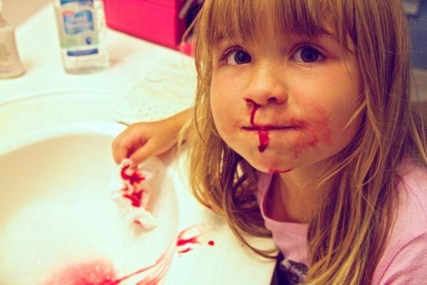 Chảy máu cam và những tác hại khôn lường