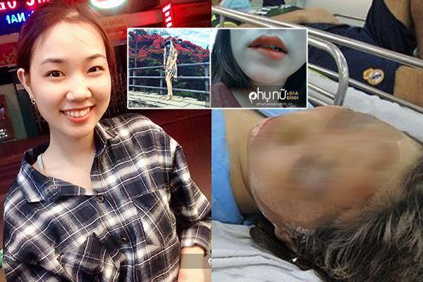 Nữ sinh bị tạt axít bỏng 75% mặt, hỏng một mắt lần đầu lộ diện sau 4 tháng phẫu thuật