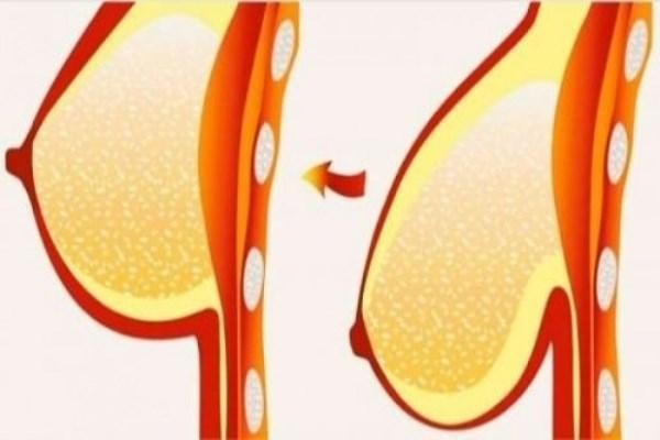 7 lời khuyên vàng giúp ngực tránh 'chảy xệ'