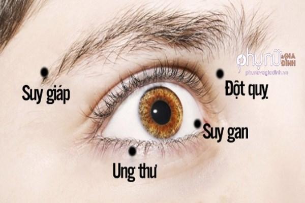Có dấu hiệu này ở mắt mà không khám ngay bạn sẽ hối hận cả đời