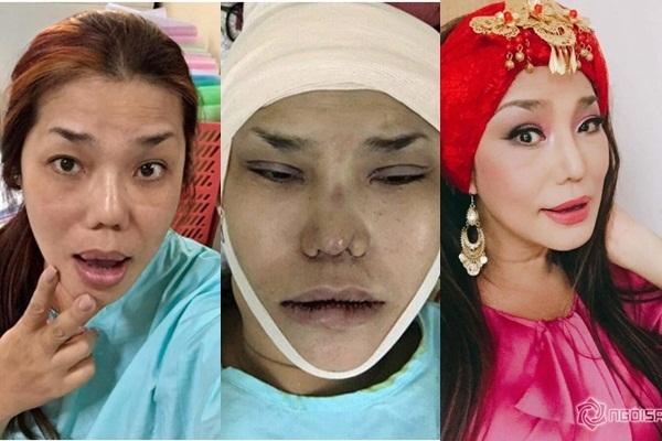 Cindy Thái Tài được khen trẻ đẹp hơn sau khi 'đại tu' toàn bộ gương mặt