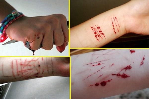 Cảnh báo hội chứng tự hủy hoại bản thân và những hậu quả đau lòng trong giới trẻ