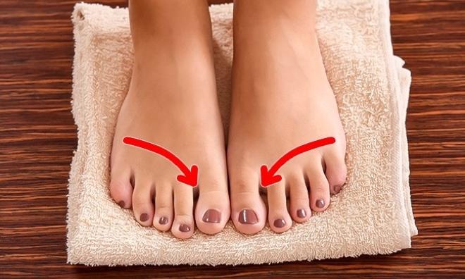 Những bệnh thường gặp ở chân trong mùa hè và cách xử lý đơn giản nhất