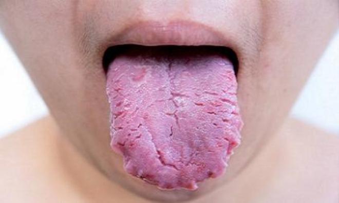 Điều gì sẽ xảy ra nếu bạn không cạo lưỡi thường xuyên