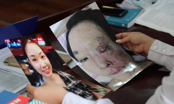 Quặn lòng với sự biến đổi hình hài của Hoàng Tăng Thị Thu Hương: Nỗi đau mang tên axit