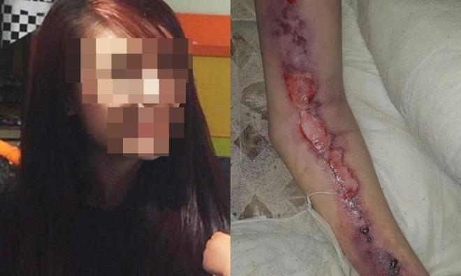 Cô gái 23 tuổi tử vong vì nhiễm vi rút ăn thịt người khi thử tư thế lạ với bạn trai