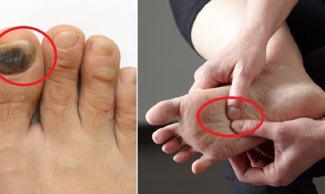 Bắt bệnh chuẩn xác thông qua những dấu hiệu bất thường ở bàn chân