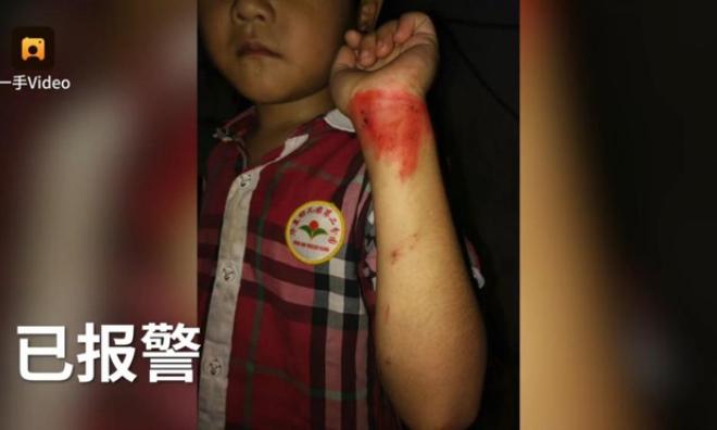 Phóng xe máy như bay lao vào người bé trai, cách hành xử sau đó của cặp nam nữ gây phẫn nộ