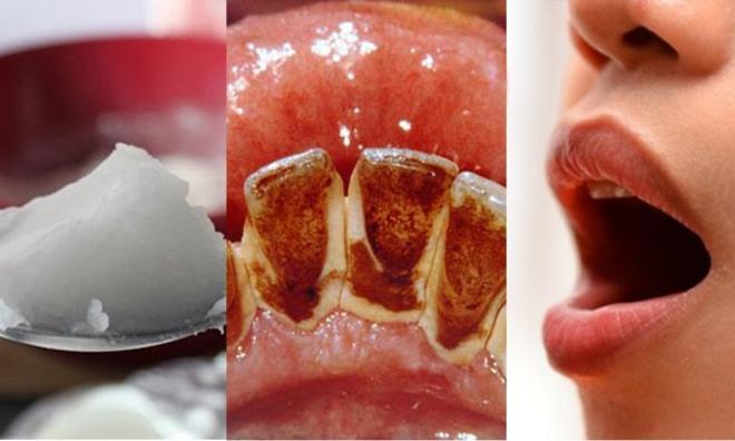 Ngậm 1 thìa này 5 phút mỗi sáng nhiệt miệng, hôi miệng kinh niên sẽ trị dứt điểm