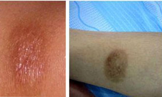 Tiết lộ cách trị sẹo thâm sau tai nạn hiệu quả cao cho người điều trị