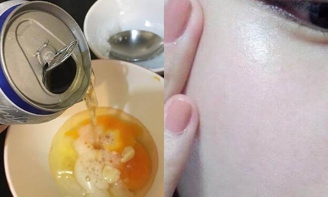 Chuẩn bị 1 lon bia + 1 quả trứng thế này, da căng sáng, trắng bóc chỉ sau 1 đêm duy nhất