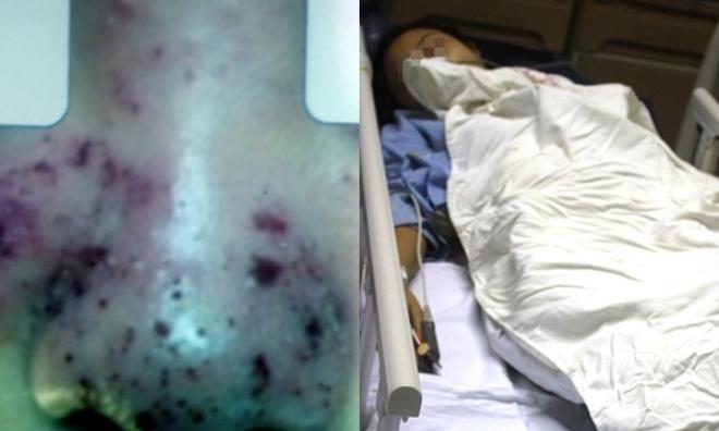 Cảnh báo làm đẹp giá rẻ: Nâng mũi với giá 2 triệu đồng, thiếu nữ bị biến chứng nặng phải cấp cứu
