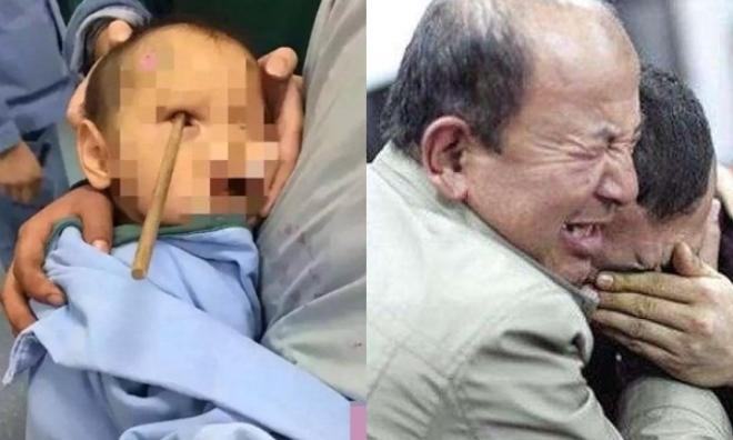 Bố mẹ bất cẩn, bé trai 3 tuổi tử vong thương tâm vì bị đũa đâm sâu vào mắt