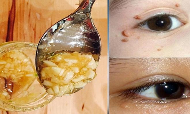 Điều trị mụn thịt quanh mắt bằng tỏi – Bí quyết trẻ hóa làn da đẹp mịn màng đến không ngờ