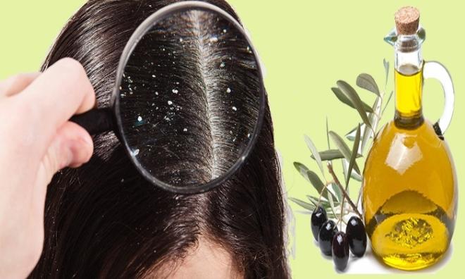 """Truy tìm cách trị gàu tận gốc """"chất lừ"""" giúp phái đẹp luôn tự tin tỏa sáng cùng mái tóc đẹp"""