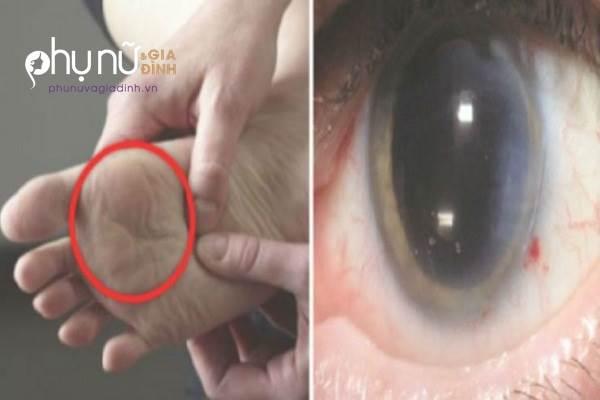 Cảnh báo: Nếu thấy biểu hiện này ở chân, có thể bạn đang mắc phải căn bệnh cực kì nguy hiểm - Ảnh 1