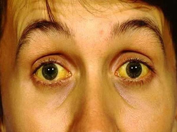 4 tín hiệu này xuất hiện trên mặt, báo hiệu ung thư gan cận kề