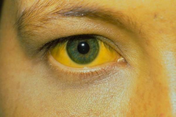 9 thay đổi bất thường trên da cảnh báo bệnh nguy hiểm - Ảnh 1