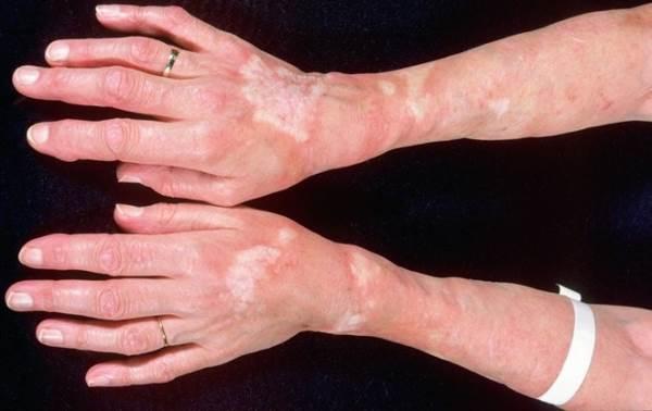 9 thay đổi bất thường trên da cảnh báo bệnh nguy hiểm - Ảnh 6
