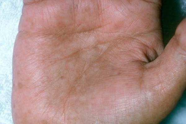 9 thay đổi bất thường trên da cảnh báo bệnh nguy hiểm - Ảnh 9