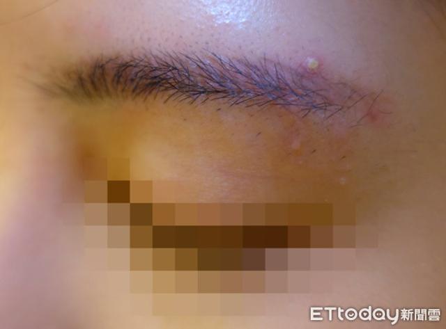 Phun xăm lông mày, cô gái bị nổi 50 mụn cóc, bác sĩ cảnh báo căn bệnh có thể gây biến dạng khuôn mặt, thậm chí tử vong - Ảnh 1