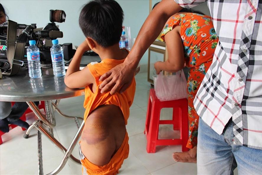 Vụ cô giáo đánh học sinh khuyết tật: Mẹ học sinh 'nhờ' cô giáo đánh - Ảnh 1