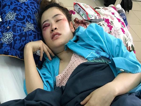 Vụ cô gái bị đánh nhập viện vì tranh bánh xèo: Nam thanh niên là cháu ruột trưởng công an phường, muốn gửi lời xin lỗi nạn nhân - Ảnh 1