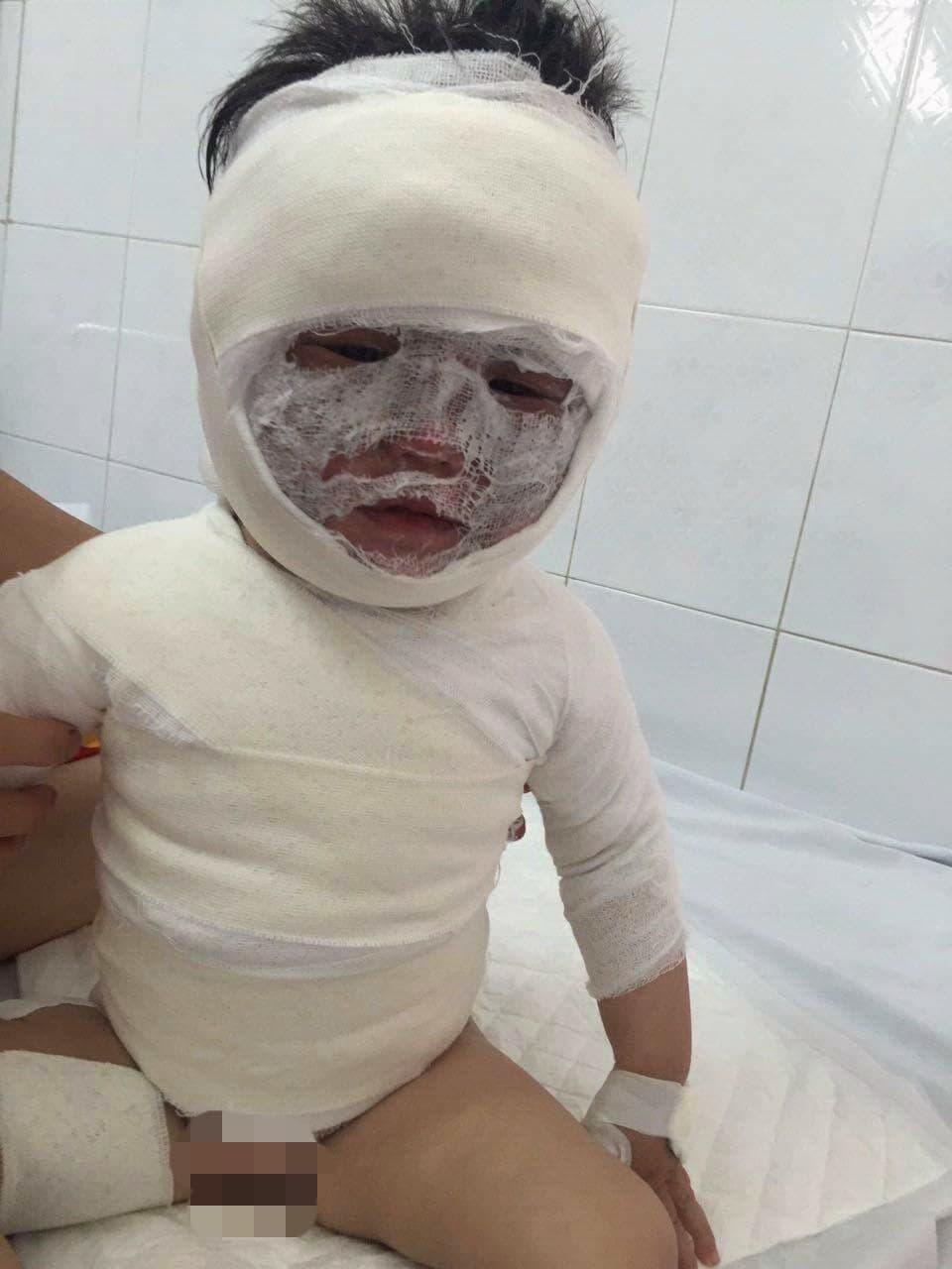 Ở nhà với ông nội, bé gái 2 tuổi bị ca nước sôi đổ vào người gây bỏng nặng - Ảnh 1