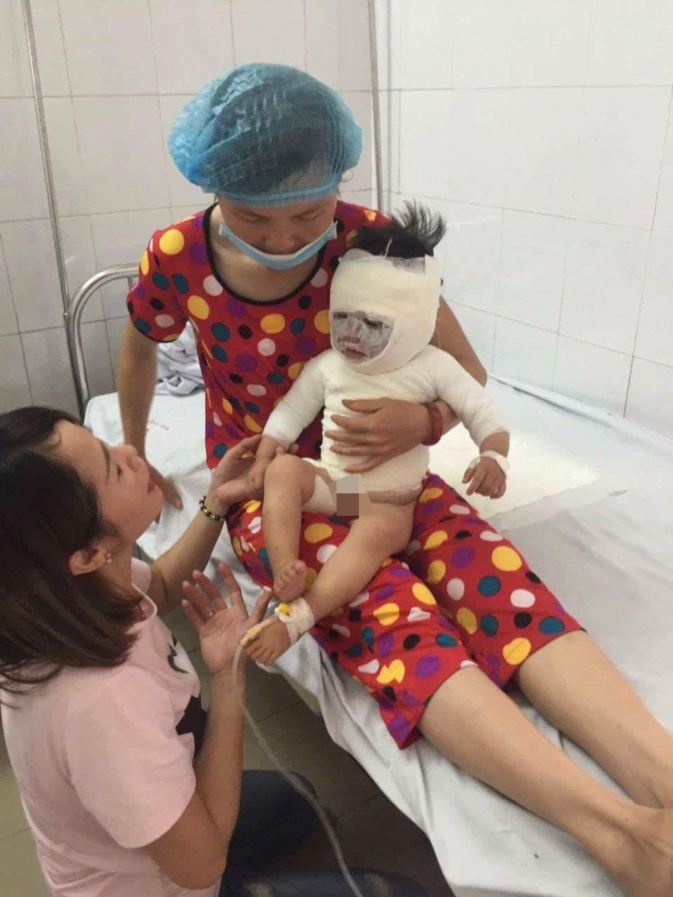 Ở nhà với ông nội, bé gái 2 tuổi bị ca nước sôi đổ vào người gây bỏng nặng - Ảnh 2