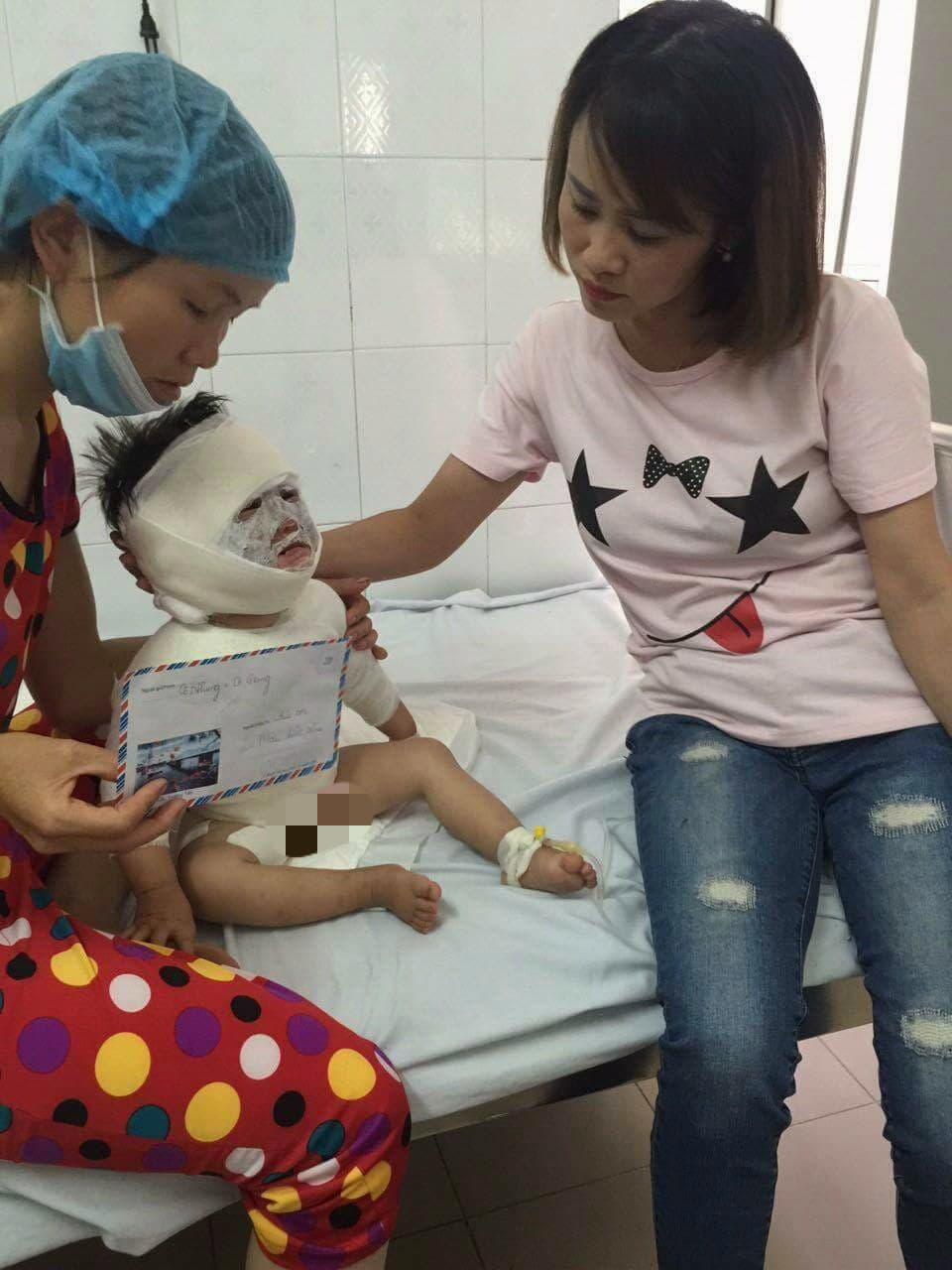 Ở nhà với ông nội, bé gái 2 tuổi bị ca nước sôi đổ vào người gây bỏng nặng - Ảnh 3