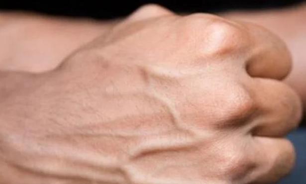 Cơ thể nổi gân xanh cảnh báo điều gì về sức khỏe của bạn? - Ảnh 2
