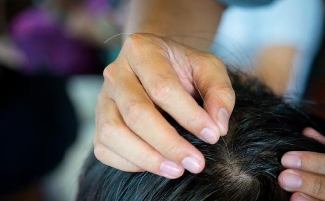 Nên kết hợp chế độ dinh dưỡng, sinh hoạt và các bài thuốc dân gian trị tóc bạc sớm