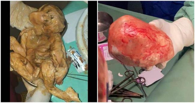 Đau bụng âm ỉ mãi không khỏi, người phụ nữ đi khám và ngạc nhiên tột độ khi biết trong bụng là thai nhi đã chết 15 năm - Ảnh 2