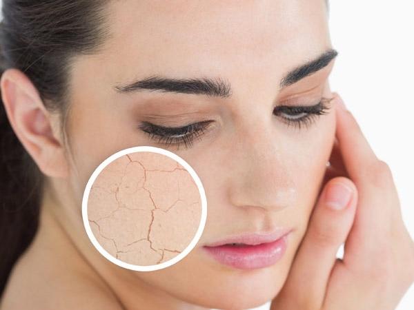 Dấu hiệu của làn da bị thiếu chất - Ảnh 1