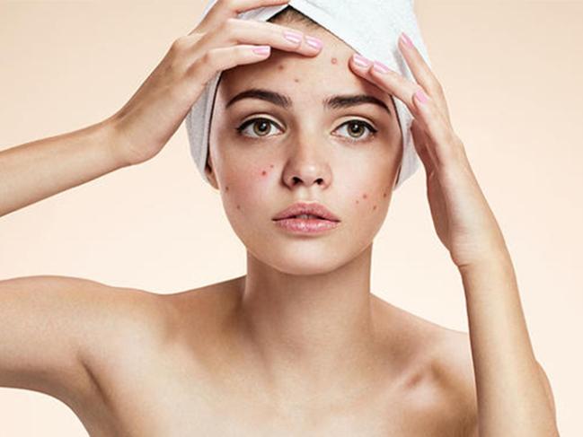 Dấu hiệu của làn da bị thiếu chất - Ảnh 3