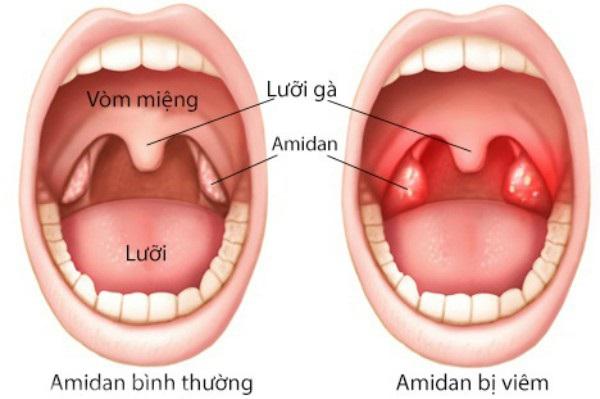 Dấu hiệu nhận biết, cách điều trị và phòng ngừa viêm amidan ở trẻ em - Ảnh 1