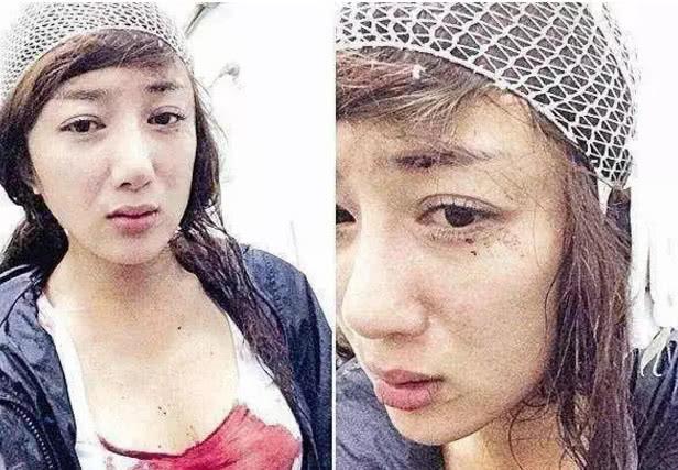 5 lần phẫu thuật thẩm mỹ, từng phải khâu 20 mũi ở đầu là những gì 'ác nữ' Mạn Nương của 'Minh Lan Truyện' đã trải qua - Ảnh 4