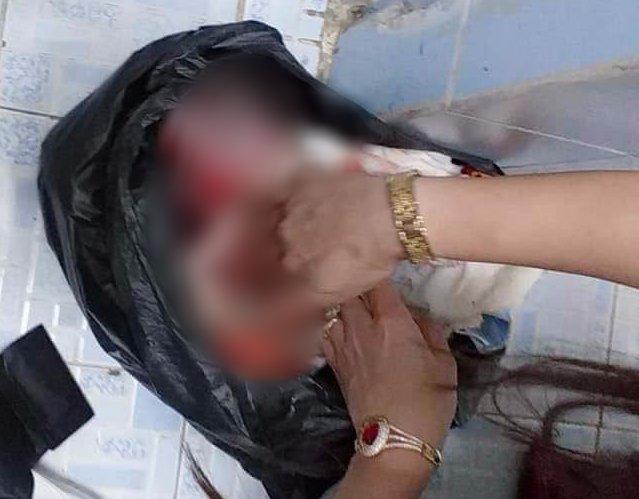 Phát hiện thi thể bé sơ sinh bị quấn dây vải quanh cổ, nghi bị mẹ sinh trong toilet công ty rồi vứt bỏ - Ảnh 2