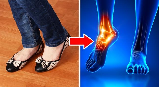 Những kiểu giày đẹp nhưng gây hại cho sức khỏe - Ảnh 1