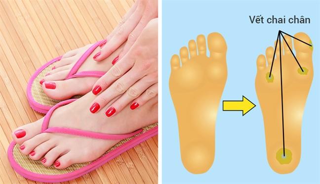 Những kiểu giày đẹp nhưng gây hại cho sức khỏe - Ảnh 4