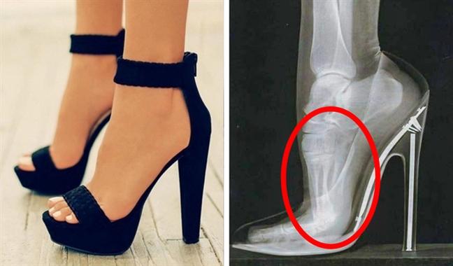 Những kiểu giày đẹp nhưng gây hại cho sức khỏe - Ảnh 5